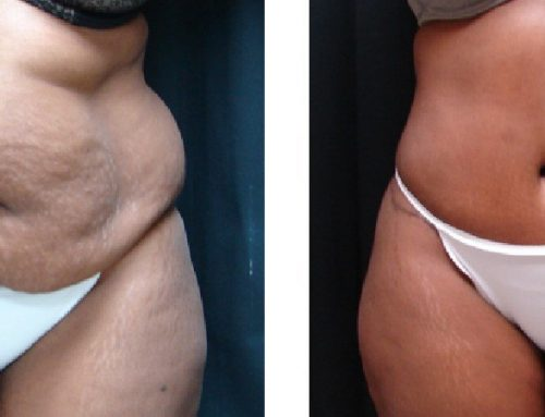 Age 36 Female –  Abdominoplasty and Liposuction