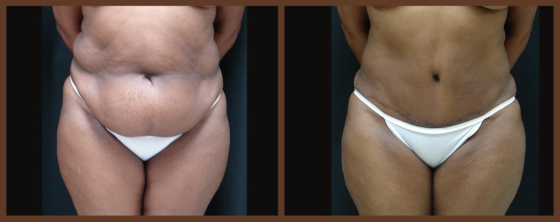 abdominoplasty-before-and-after-1-virginia-beach-plastic-surgeon-VA-0069-JSA