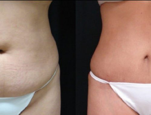 Age 51 Female –  Abdominoplasty and Liposuction for Contour