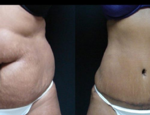Age 40 Female –  Abdominoplasty and Liposuction for Contour