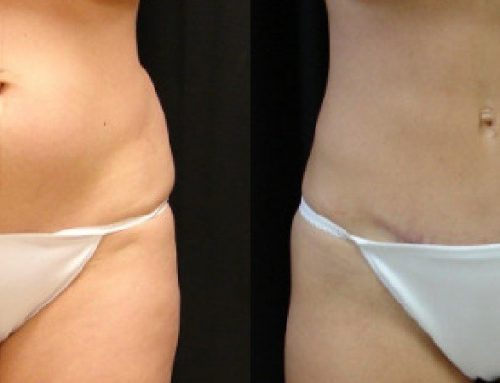 Age 36 Female –  Abdominoplasty With Liposuction