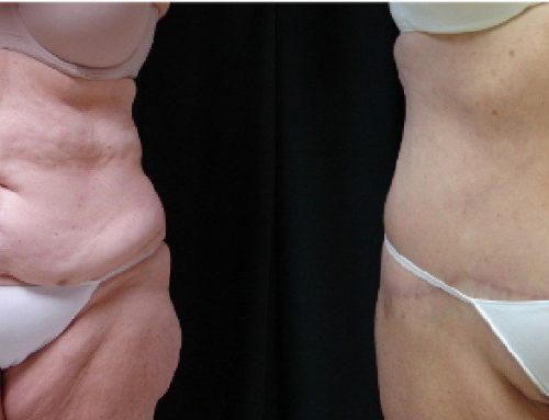 Age 63 Female –  Abdominoplasty with Liposuction