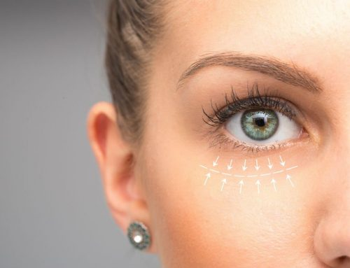 Can Blepharoplasty Be Covered by Insurance?