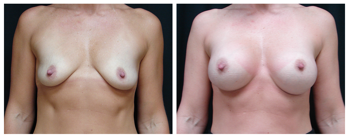 breast-augmentation-before-and-after-1-virginia-beach-plastic-surgeon-VA-0012-JSA