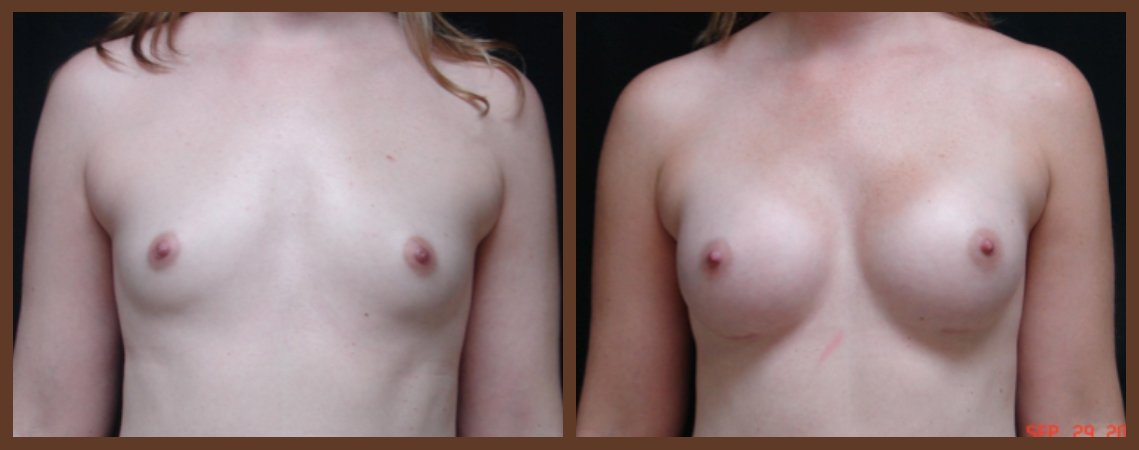 breast-augmentation-before-and-after-1-virginia-beach-plastic-surgeon-VA-0015-JSA