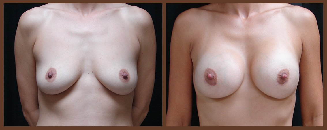 breast-augmentation-before-and-after-1-virginia-beach-plastic-surgeon-VA-0016-JSA