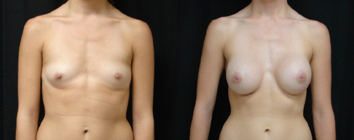 Breast Augmentation With Lift - Dr. John Alspaugh