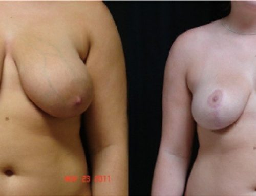 Age 19 Female –  Breast Reduction