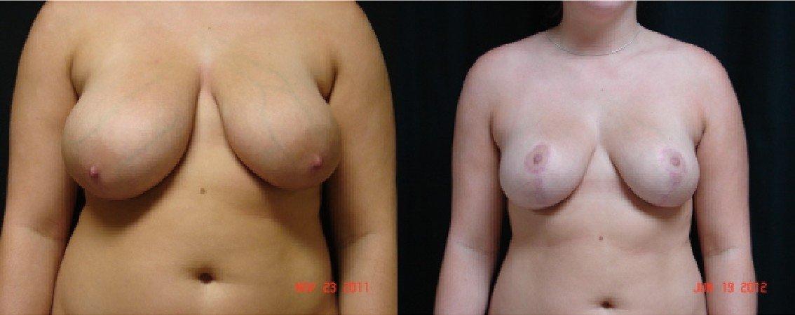 Breast Augmentation With Lift - Dr. John Alspaugh