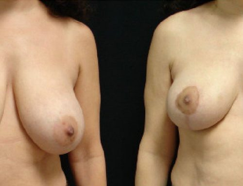 Age 47 Female –  Breast Reduction