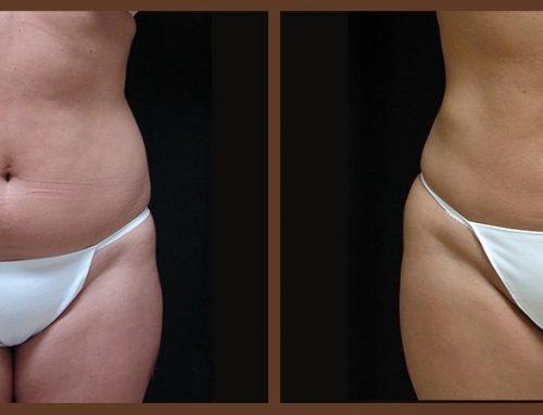 Age 37 Female –  Liposuction
