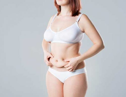 What Can a Tummy Tuck NOT Do?